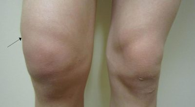 Cómo se siente un coágulo de sangre en la pierna