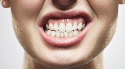 molienda-de-dientes-bruxismo