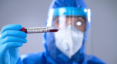 tratamiento-con-covid-19-terapia-de-plasma