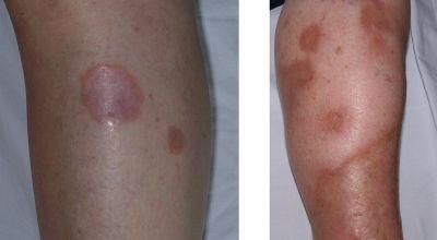 complicaciones-macrovasculares-microvasculares-de-la-diabetes