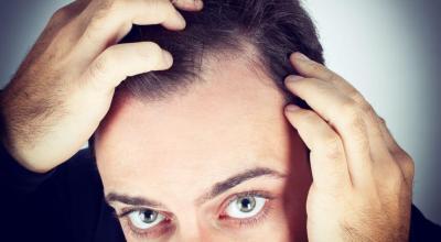 es-usted-el-candidato-adecuado-para-el-trasplante-de-cabello