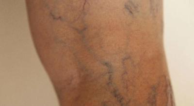 malformacion-arteriovenosa-avm-causa-sintomas-y-tratamiento