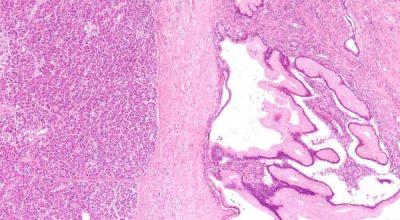 marcadores-de-riesgo-tumoral-todo-lo-que-necesita-saber