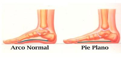pies-planos-pie-plano-causas-sintomas-tratamiento
