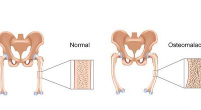raquitismo-osteomalacia-causa-sintomas-y-prevencion