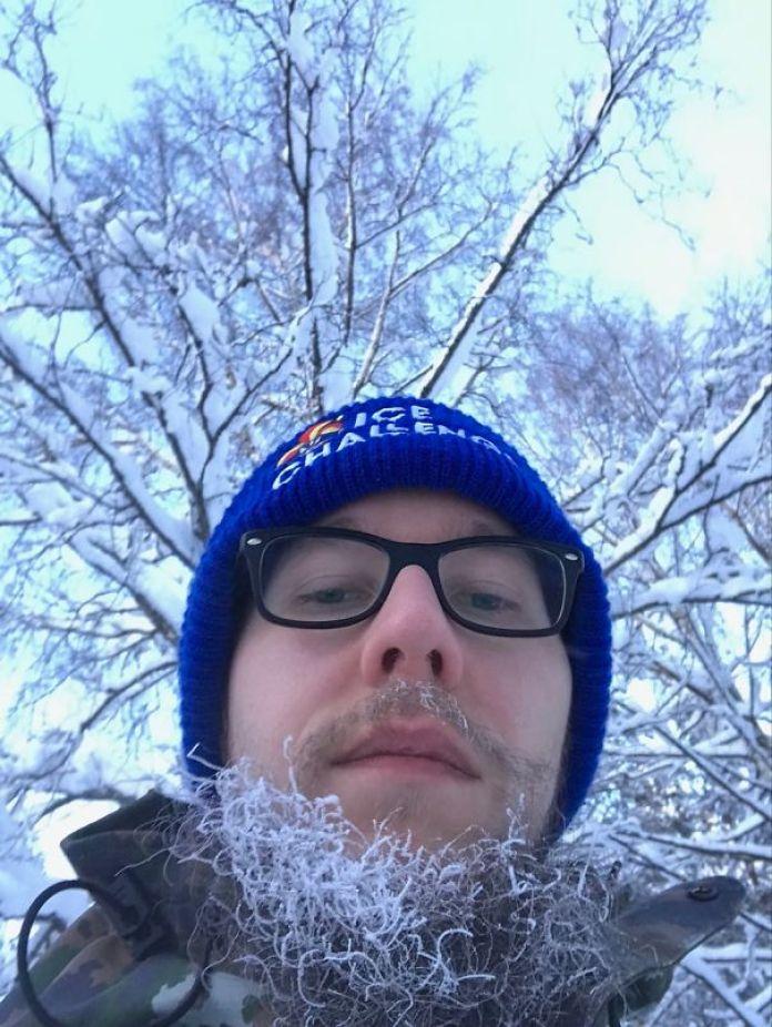 frozen beard