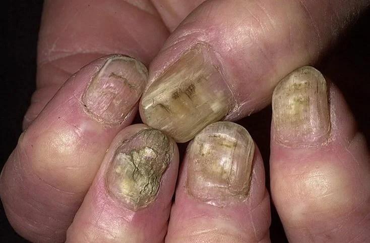 «Грибок ногтей на руках: фото, симптомы, лечение ...