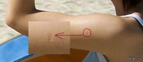 «Какую прививку делают в детстве, шрам от которой остаётся ...