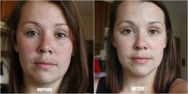 Microdermabrasion Before & After Fresh Face Video