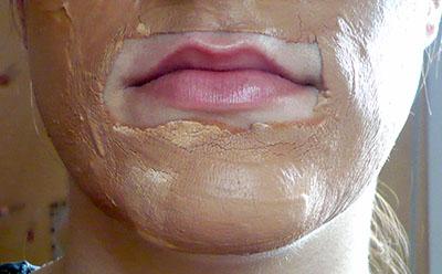 masque argile blanche rose peaux sensibles