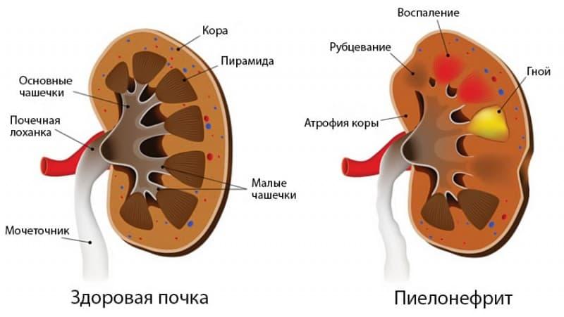 Pielonefrit