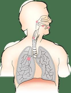 cancer de la gorge-les organes