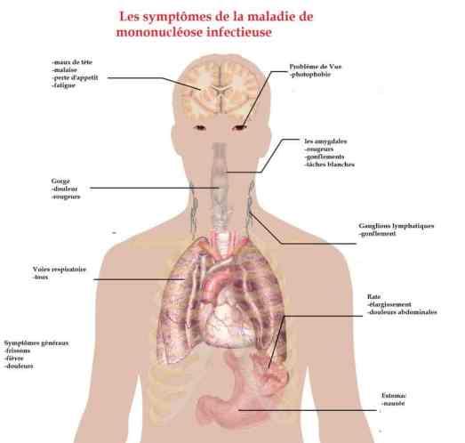 les symptômes de la mononucléose
