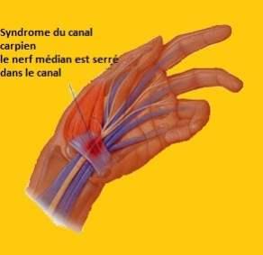 Syndrome du canal carpien- le nerf médian