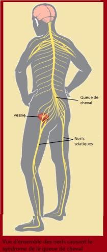vue d'ensemble des nerfs causant le syndrome de la queue de cheval