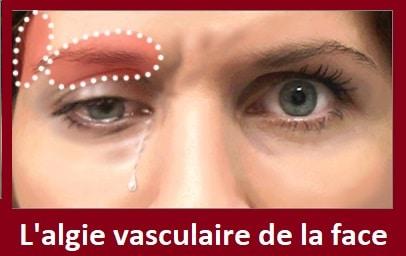 Algie vasculaire de la face: causes, symptômes & traitement