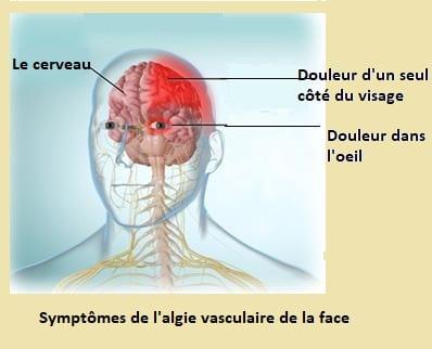 Symptômes de l'algie vasculaire de la face