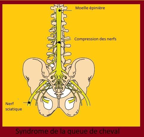 Syndrome de la queue de cheval: symptômes, traitement & récupération