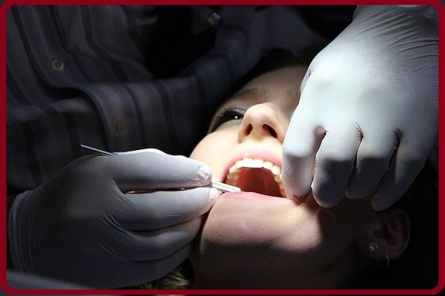 L'abcès dentaire que faire: définition, causes & traitement