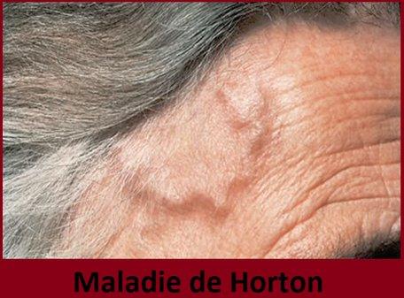 Maladie de Horton (artérite temporale): causes, symptômes & traitement