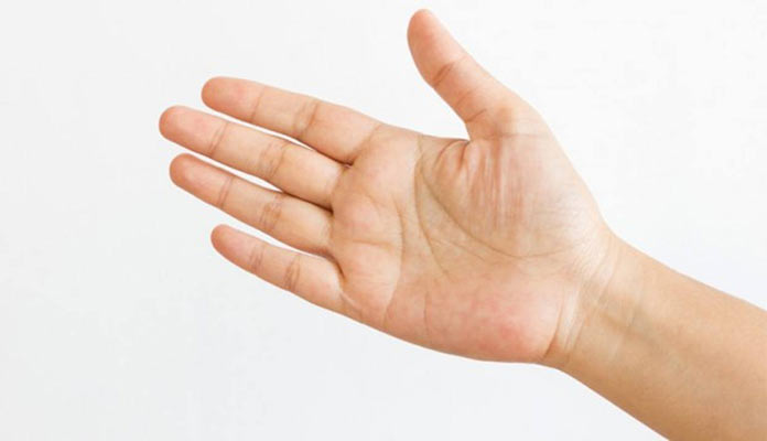 ¿Qué causa los cortes entre los dedos?