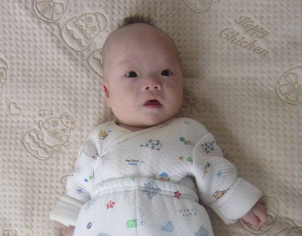Please help us speak up for baby Edward