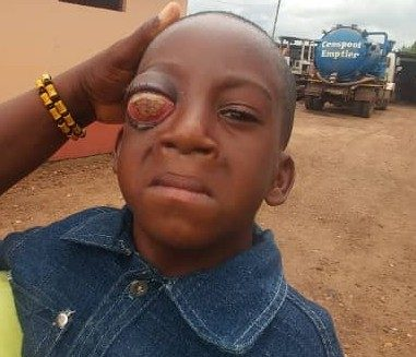 V/R: 5yrs old John, needs financial support to correct an eye defect