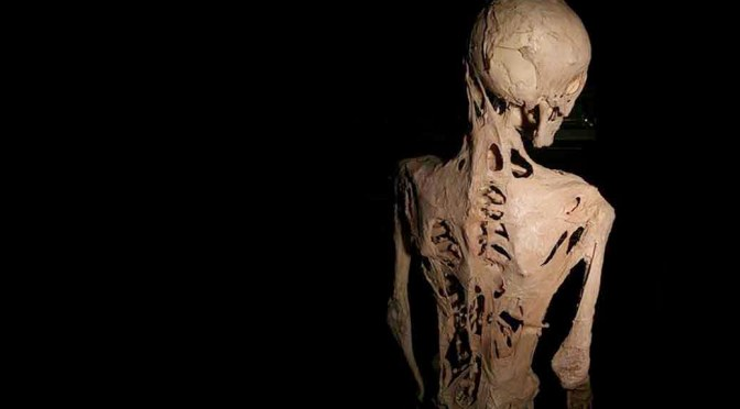 Horrible Rare Genetic Disease Turns Humans to Statues