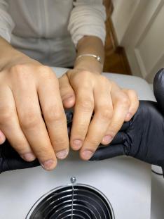 Tırnak yeme - protez tırnak uygulaması öncesi.