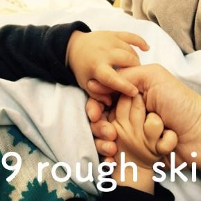 #9 rough skin