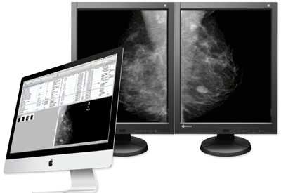aycan mammography workstation iMac EIZO