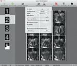 aycan workstation Film Composer plug-in DICOM Print