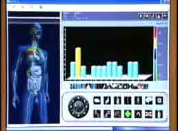 Electro Interstial Scan
