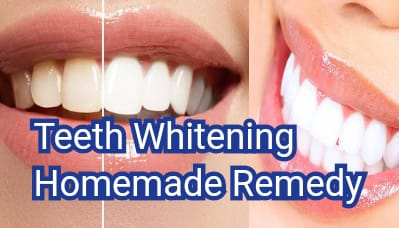 teeth whitening home made remedy