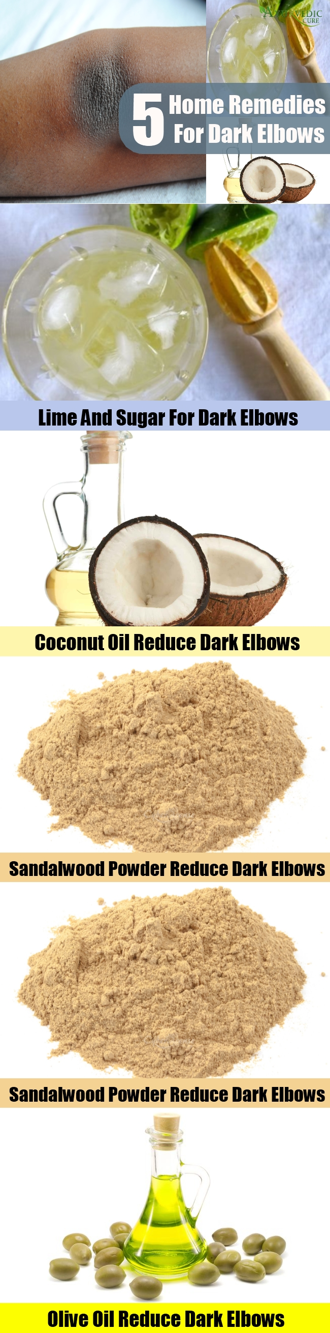 5 Amazing Home Remedies For Dark Elbows