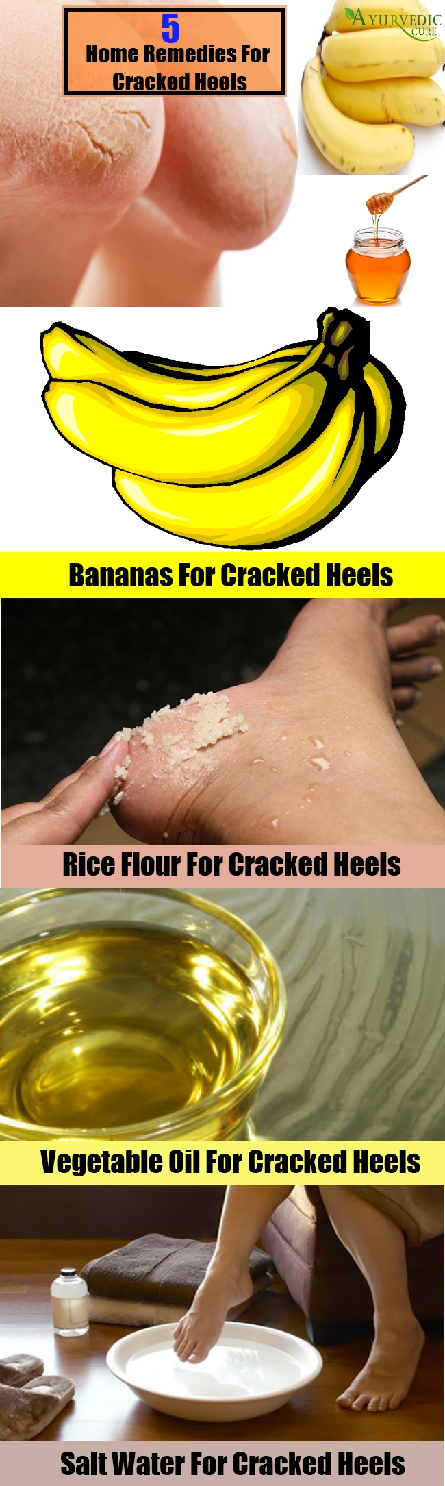5 Best Home Remedies For Cracked Heels