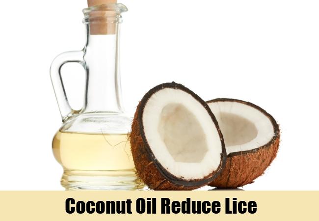 Coconut Oil Reduce Lice