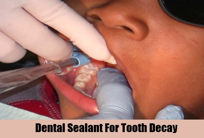 Dental Sealant For Tooth Decay