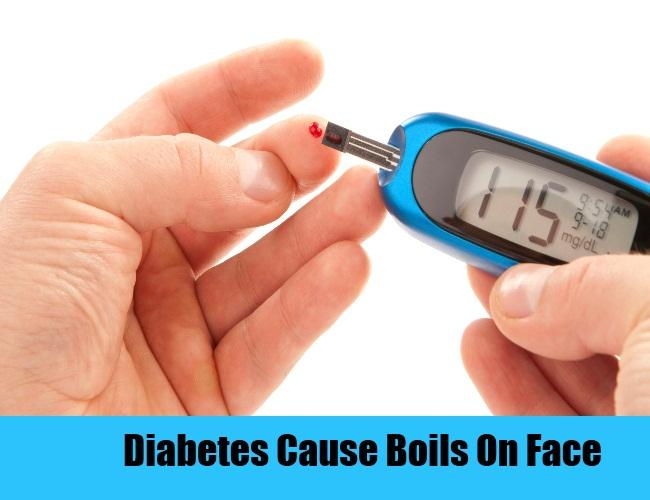 Diabetes Cause Boils On Face