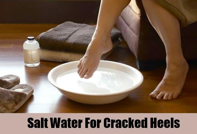 Salt Water For Cracked Heels