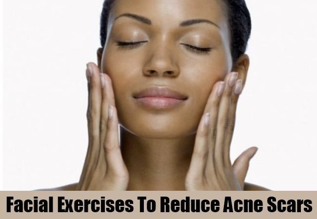 Facial Exercises To Reduce Acne Scars