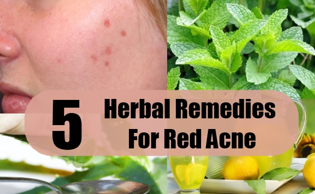 Herbal Remedies For Red Acne