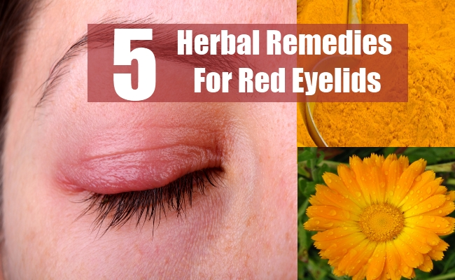 Herbal Remedies For Red Eyelids