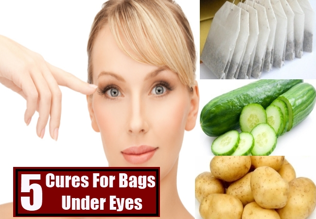 Cures For Bags Under Eyes