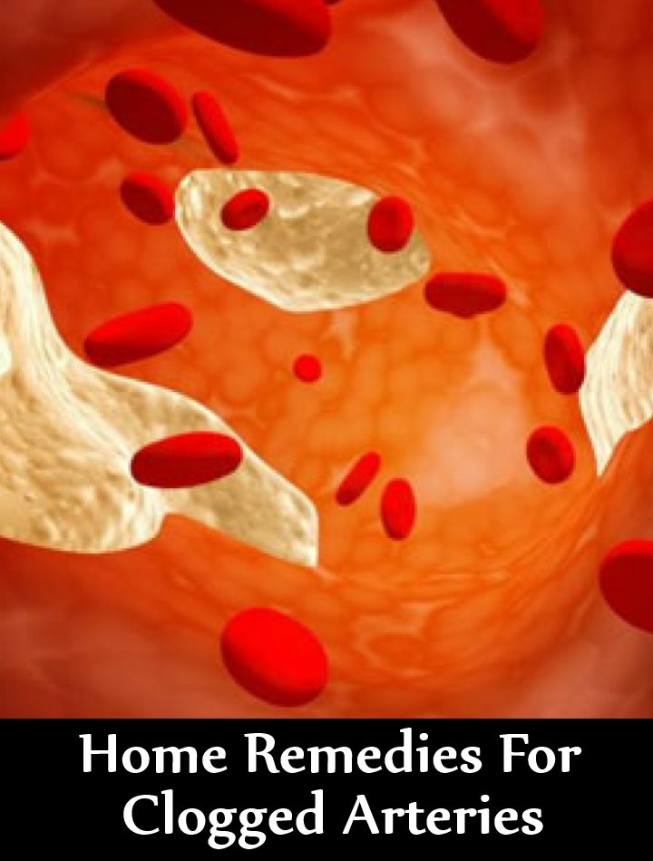 15 Home Remedies For Clogged Arteries