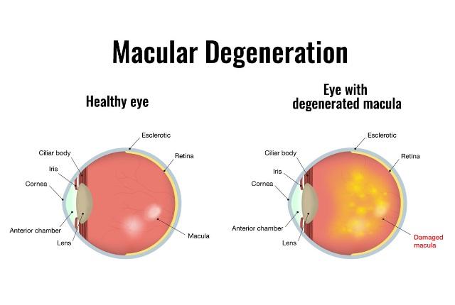 Handles Macular Degeneration