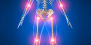 Douleur mécanique ou inflammatoire?