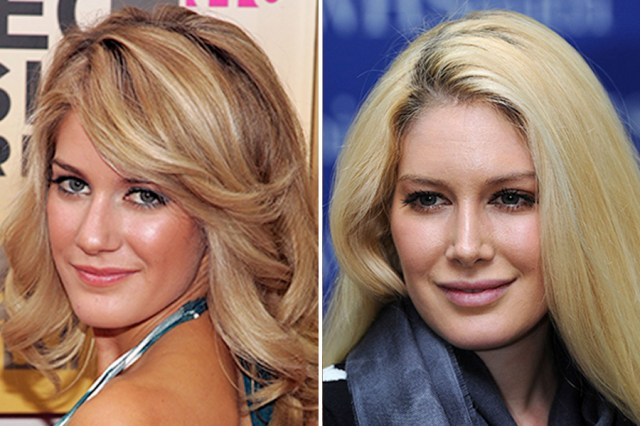 Image result for Heidi montags lips before and after