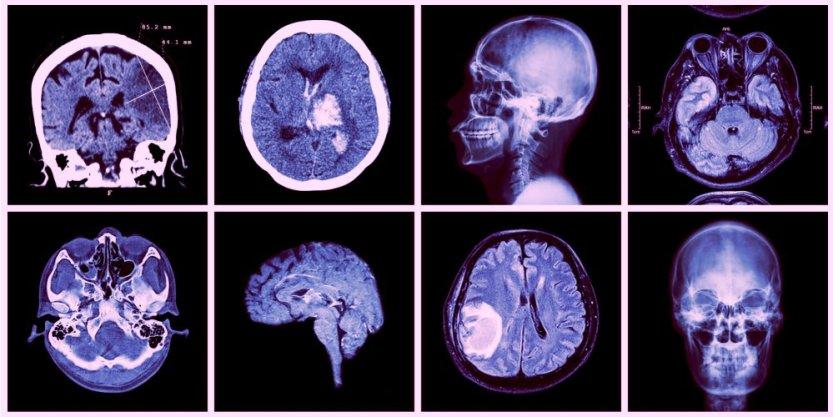 Prevenirea accidentelor cerebrale