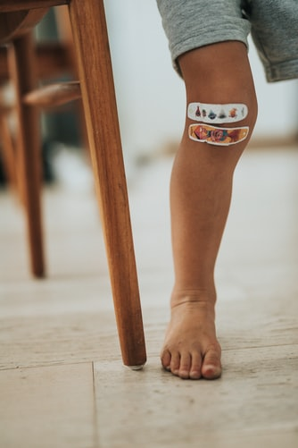 A leg with Band-Aids placed across the knee.